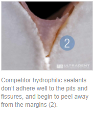 Competitor hydrophilic sealants don't adhere well to the pits and fissures, and begin to peel away from the margins (2).